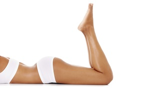 Iowa Vein Center: Three Laser Hair Removal Treatments for a Small, Medium, or Large Area at Iowa Vein Center (81% Off)