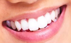 STUDIO ODONTOIATRICO GIGANTE: Fino a 4 impianti dentali in titanio con garanzia a vita
