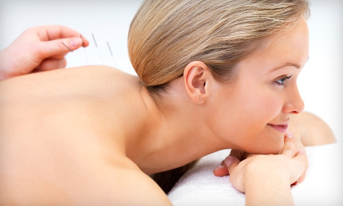 Lua Cheia Acupuncture - Ocean Beach: Two or Four 60-Minute Acupuncture Sessions at Lua Cheia Acupuncture (Up to 69% Off)