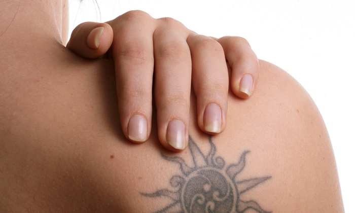 "NewSkin Tattoo Removal - Swansea: One Laser Tattoo-Removal Treatment for a 2""x2"", 4""x4"", or 6""x6"" Area at NewSkin Tattoo Removal (Up to 70% Off)"