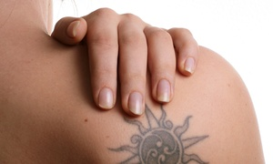 """NewSkin Tattoo Removal: One Laser Tattoo-Removal Treatment for a 2""""x2"""", 4""""x4"""", or 6""""x6"""" Area at NewSkin Tattoo Removal (Up to 74% Off)"""
