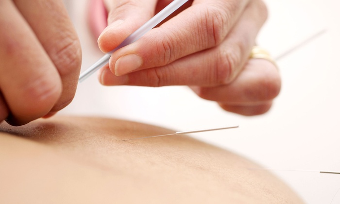 Integrate Acupuncture - Mid-City West: One, Three, or Six Acupuncture Treatment Packages at Integrate Acupuncture (Up to 78% Off)