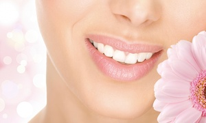 A Silva Dental Studio: Zoom Teeth Whitening with Exam and Optional Polish and Home Whitening Kit at A Silva Dental Studio (Up to 77% Off)