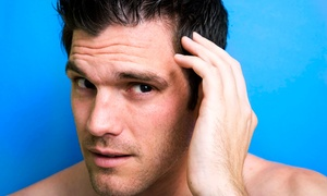 Pro Hair Inc: $99 for Micro Point Link Thinning-Hair Restoration at Pro Hair Inc ($217.50 Value)