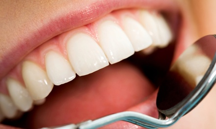 $15 for a Dental Cleaning, Exam, and Bitewing X-Rays from Dr. Douglas Hamill, DDS ($146 Value)