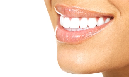 Teeth Whitening, Dental-Exam Package, or Full Porcelain Crown at Signature Smiles of Tulsa (Up to 80% Off)