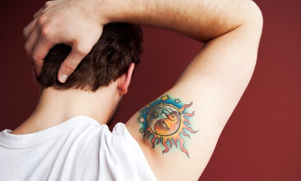 Three Laser Tattoo-Removal Sessions for an Area of 3, 6, or 10 Sq. In. at Fountain of Youth Medical Spa (Up to 70% Off)