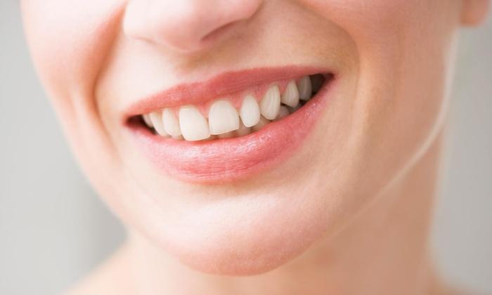 Alamo Oral Health - Northwest Side: $50 for $310 Worth of Dental Checkup at Alamo Oral Health