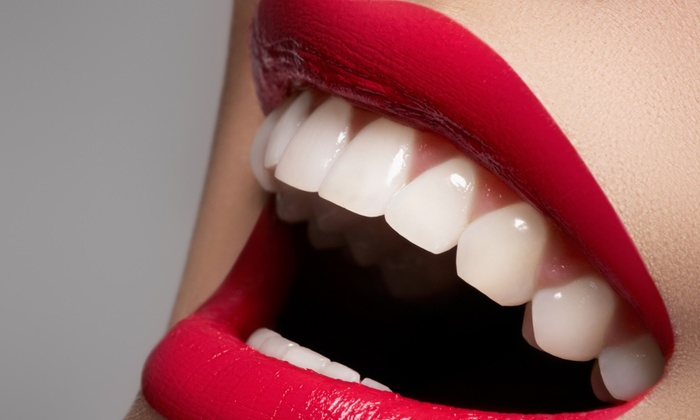 Butter Body Contouring - Kiwanis Park: $55 for $129 Worth of in-office teeth whitening at Butter Body Contouring