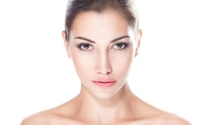 Marina Mitri Skin Care Center: SkinCeuticals Micro Peel or Pigment-Balancing Peel at Marina Mitri Skin Care Center (Up to 62% Off)