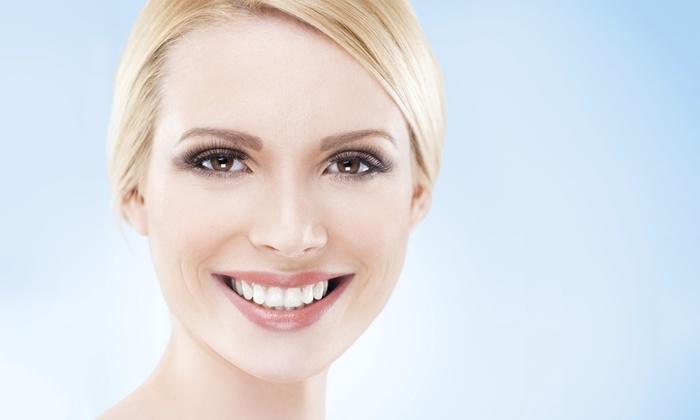 Mitre - Mitre: Limpieza bucal con opción a limpieza profunda de encías en 1 o 2 arcadas desde 19 € en Mitre