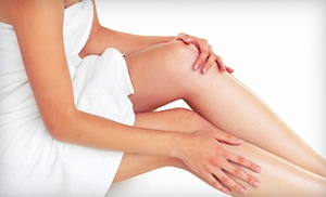 GL Clinic: $163 for Three Sclerotherapy Vein-Removal Treatments at GL Clinic ($396 Value)