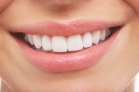 Weber Orthodontics: $34 for $1,000 Credit Toward Invisalign, Plus Exam and Whitening Kit at Weber Orthodontics ($1,150 Value)