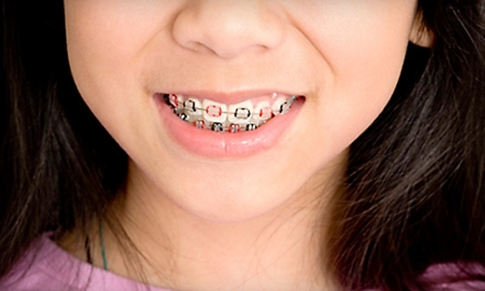 Taylor Orthodontics - Multiple Locations: $49 for Initial Invisalign, Incognito, or Traditional-Braces Exam, X-rays, and Impressions, Plus $1,000 Off Total Cost from Taylor Orthodontics ($325 Value)