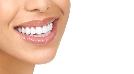 Teeth Cleaning with Exam, X-Ray, and Option of Take-Home Whitening Kit at Hatfield Dentistry (Up to 79% Off)