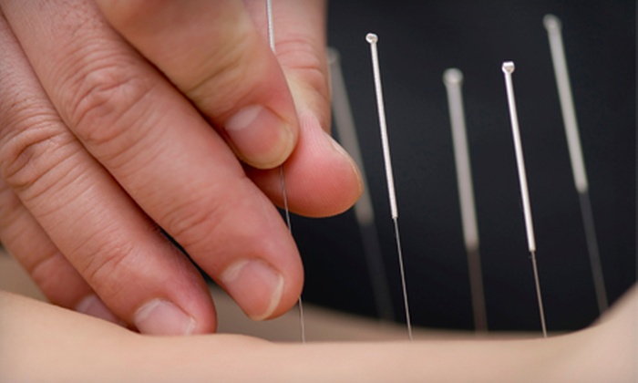 Acupuncture Center - Sylvan Grove: Consultation and One or Two Chinese Acupuncture Treatments at Acupuncture Center in Overland Park (Up to 68% Off)