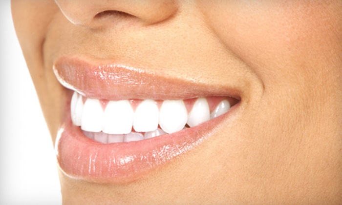 Eventful Smiles - Ocala: $69 for Teeth Whitening at Eventful Smiles (Up to $199 Value)