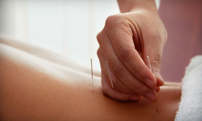 Vyana Wellness Naturopathic Centre - Waterloo: One or Three Acupuncture and BodyTalk Sessions at Vyana Wellness Naturopathic Centre (Up to 62% Off)
