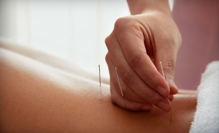 One Acupuncture and BodyTalk Session (a $100 value) - Vyana Wellness Naturopathic Centre in Waterloo