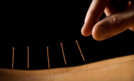 1 Consultation and 1 Acupuncture Treatment (a $100 value) - Steve Paine OMD in Simsbury