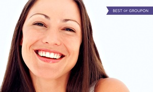 Richard D. Morgan D.D.S Cosmetic & Family: Cleaning, Exam, and X-rays with Optional Whitening Kit at Richard D. Morgan D.D.S. Cosmetic & Family (Up to 89% Off)