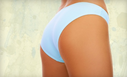 1 Alma Accent Cellulite Treatment for Up to One 10-Inch Area (a $750 value) - Enhance Your Natural Beauty in Oklahoma City