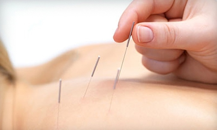 DeRocher Chiropractic & Acupuncture - Norwalk: $39 for Two Acupuncture Sessions ($80 Value) or One Chiropractic Exam, X-Rays, and Two Relief Treatments ($252 Value) at DeRocher Chiropractic & Acupuncture