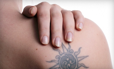 Five Sessions of Laser Tattoo-Removal on a 2