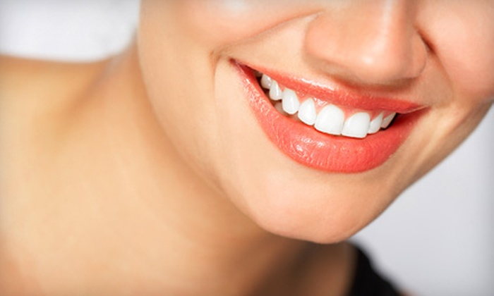 Brilliant Smiles Dental Group - Multiple Locations: One Zoom! Whitening Treatment from Brilliant Smiles Dental Group. Five Locations Available.