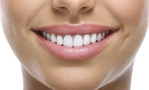 White & Beauty: Laserowe wybielanie zębów od 99,99 zł w gabinecie White & Beauty