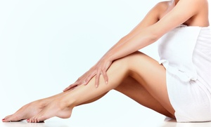 The Vein Center of Maryland: Two or Four 15-Minute Cutera Laser Spider-Vein Treatments at The Vein Center of Maryland (Up to 80% Off)