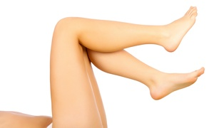 78% Off at Access Laser & Vein Clinic at Access Laser & Vein Clinic, plus 6.0% Cash Back from Ebates.
