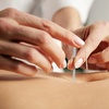 Up to 48% Off Acupuncture Sessions at HUNAN ACUPUNCTURE P.C.