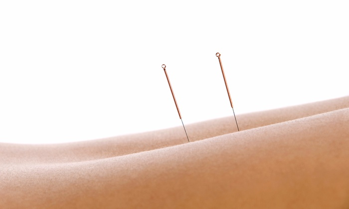 Acupuncture, Herbal Medicines and Eastern Healing Arts - Huntington: One or Three Acupuncture Sessions at Acupuncture, Herbal Medicines and Eastern Healing Arts (Up to 72% Off)
