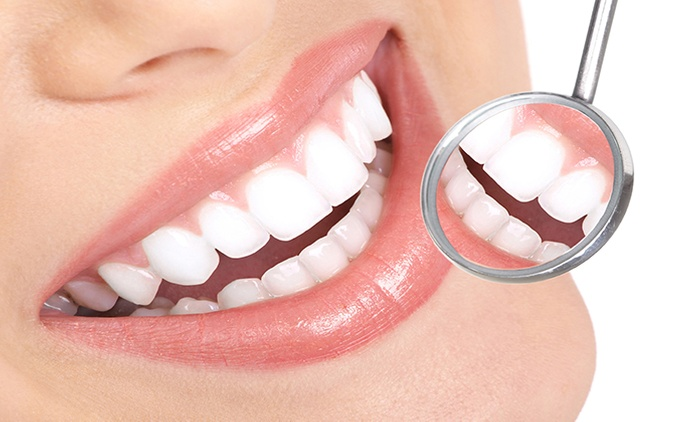Scale and Polish with Oral Hygiene Session or Laser Teeth Whitening with Fluoride Application at Creative Dental Center*