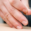 59% Off Acupuncture Sessions at Aaron Chiropractic