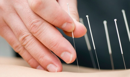 $49 for Two Acupuncture Sessions at Aaron Chiropractic ($120 Value)