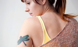Lincoln Park Aesthetics: Four Laser Tattoo-Removal Sessions at Lincoln Park Aesthetics (Up to 90% Off)