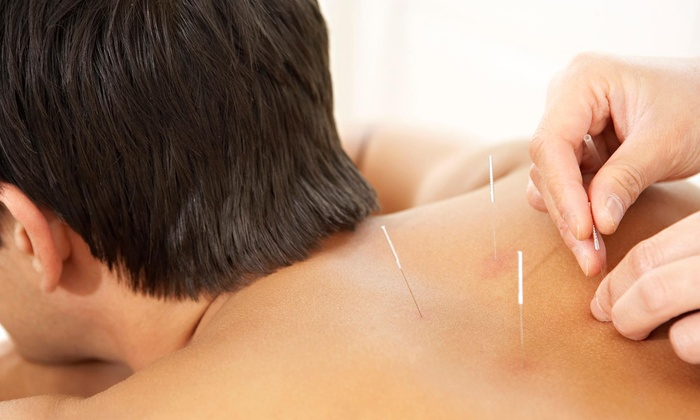 True Acupuncture - Multiple Locations: An Acupuncture Treatment at True Acupuncture (75% Off)