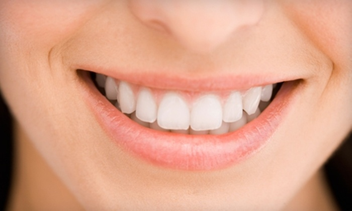 SmileFusion Teeth Whitening: $36 for a Fast-Acting Teeth-Whitening Combo Kit from SmileFusion Teeth Whitening ($73.98 Value)