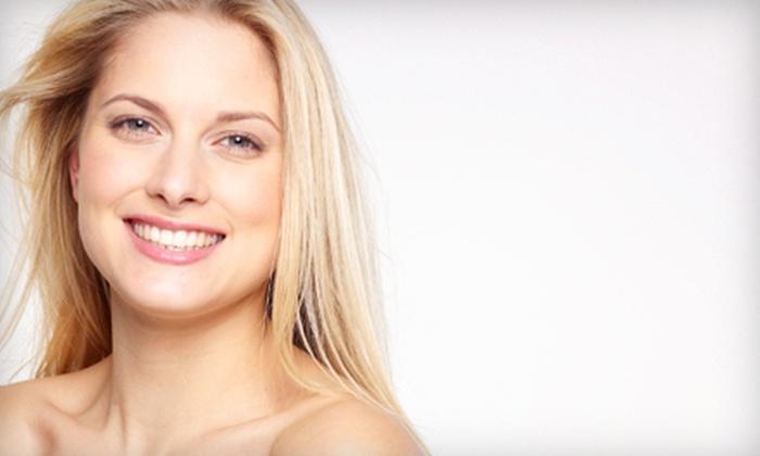 Landa Cosmetic & Spa - Framingham: Four or Six Microdermabrasion Treatments at Landa Cosmetic & Spa in Framingham