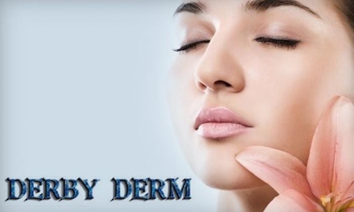 Derby Derm - Glen Hills: $40 for a Microdermabrasion Treatment at Derby Derm ($80 Value)