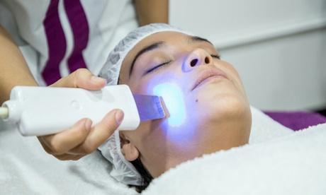 Higiene facial con doble peeling, microdermoabrasión y opción a máscara desde 34,99 € en Nimfa Medicina Estética