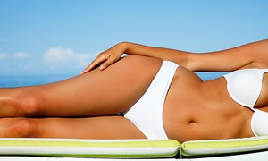 Concept Beauté Global: 4, 8 or 10 Sessions of Slimming Ultrasound Cavitation from Concept Beauté Global (86% Off)