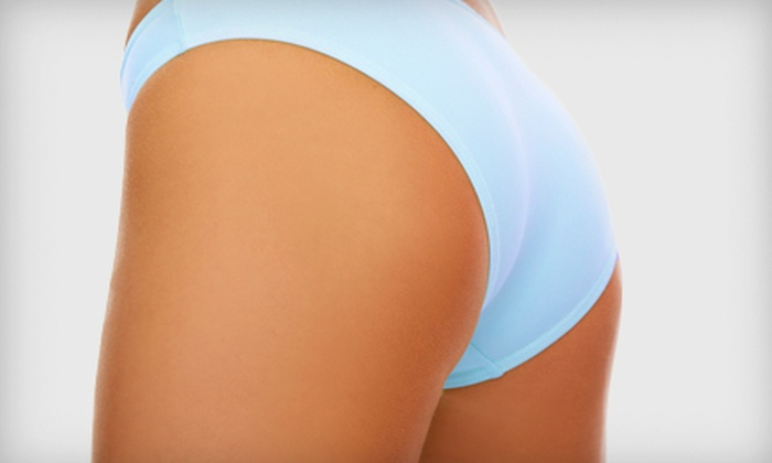 John Nelson Salon and Spa - Brentwood: $199 for Five Synergie Cellulite-Reduction Treatments at John Nelson Salon and Spa in Brentwood ($475 Value)