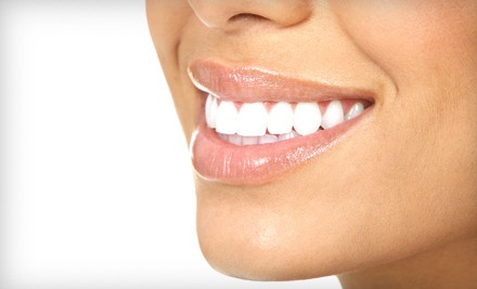 ZOOM! Teeth-Whitening Treatment (an $800 value) - Cosmetic Dental Associates in Lake Success