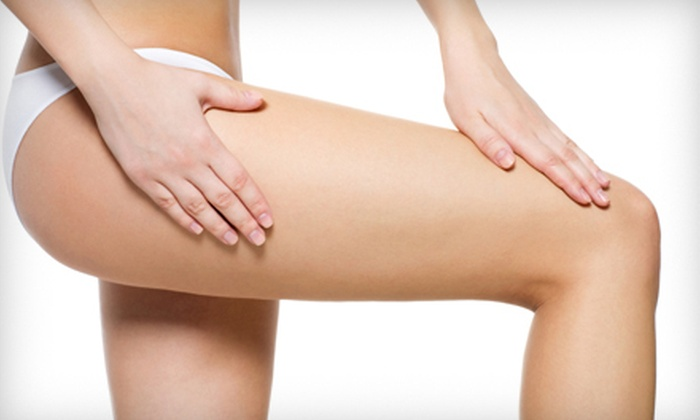 The Skin Center Medical Spa - Columbus: $199 for Three Spider- or Varicose-Vein Sclerotherapy Sessions at The Skin Center Medical Spa in Gahanna ($1,050 Value)