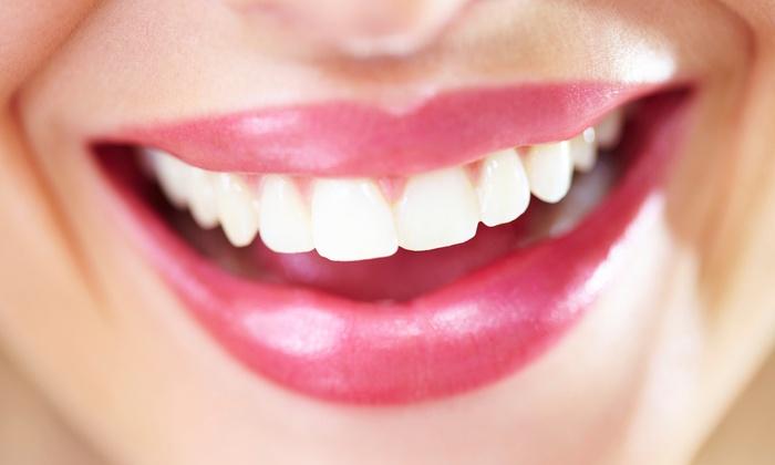 Orlando Elite Dental - Orland Park: Dental Exam, X-Rays, and Cleaning at Orland Elite Dental (82% Off)