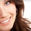 Up to 83% Off Teeth-Whitening Services
