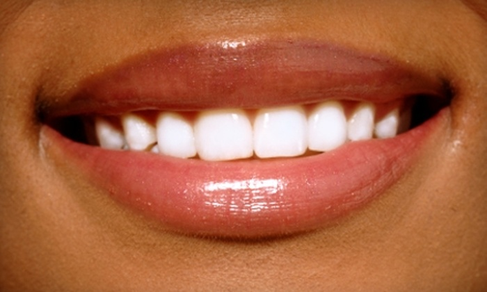 Cornerstone Dental Group - Norwood: $149 for Zoom! Whitening Treatment at Cornerstone Dental Group ($599 Value)